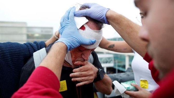 4 manifestants han perdut la visió d'un ull en uns disturbis que sumen 590 persones ateses