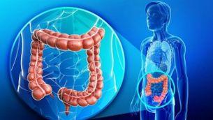 """Dr. Aldaguer: """"El càncer de colon està molt relacionat amb dietes amb poca fibra"""""""