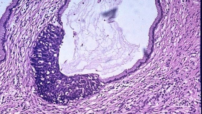 Una nova tècnica permet identificar i atacar cèl·lules tumorals que causen metàstasis