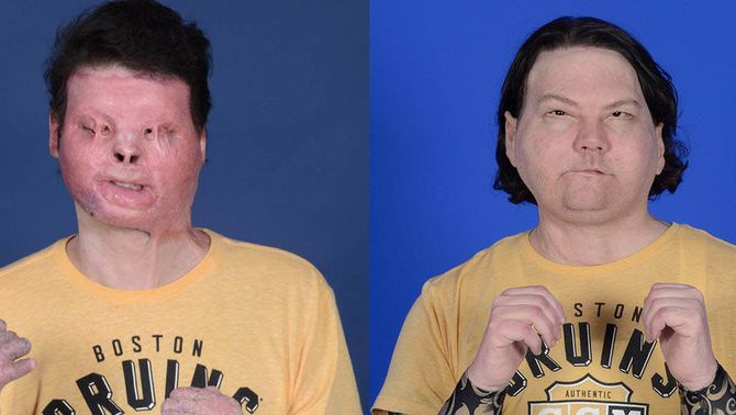"""Primer trasplantat de cara i mans amb èxit al món: """"Un regal que només tens un cop"""""""