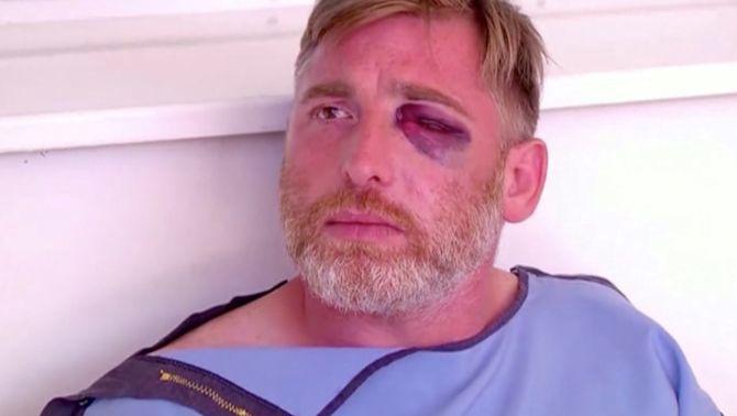 Alexander Lashkarava va ser agredit quan treballava cobrint la marxa de l'Orgull a Tbilisi