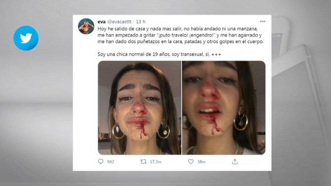 Els Mossos investiguen l'agressió a una noia transsexual de 19 anys a Barcelona