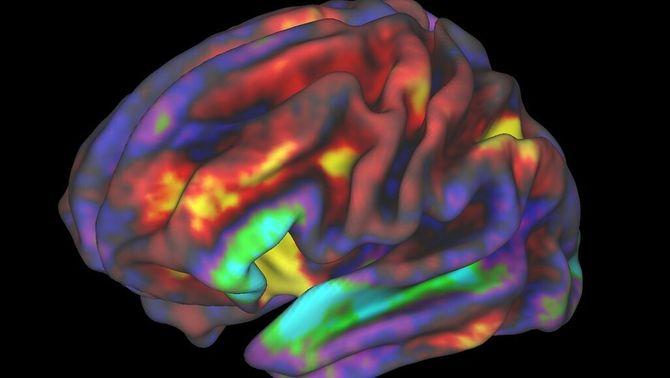 Imatge del cervell obtinguda amb ressonància magnètica funcional