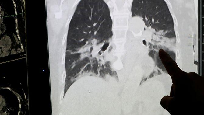 El cas d'una dona xinesa mostra que el coronavirus pot restar als pulmons de pacients donats d'alta