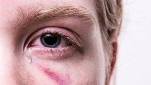 Violència masclista a Catalunya: cada cop més jove