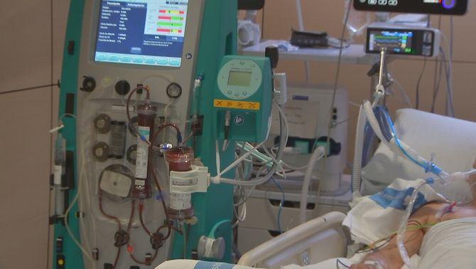 Diàlisi contra la Covid: assaig pioner al Vall d'Hebron per eliminar el virus de la sang