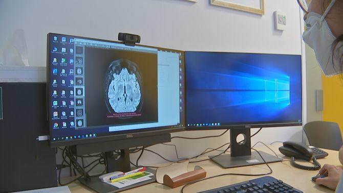 Investigadors de l'Hospital Clínic descobreixen una nova malaltia del cervell autoimmunitària