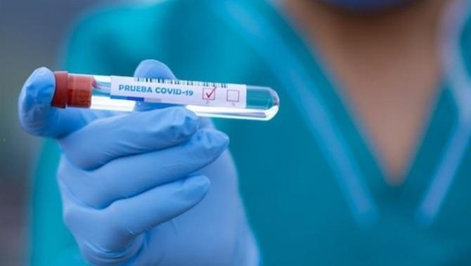 Troben el virus de la Covid en aigües residuals de Barcelona d'un any abans de la pandèmia